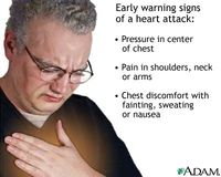 Heart attack symptoms from adam